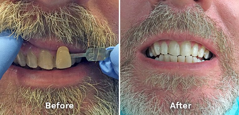 Kor teeth whitening before and after photo